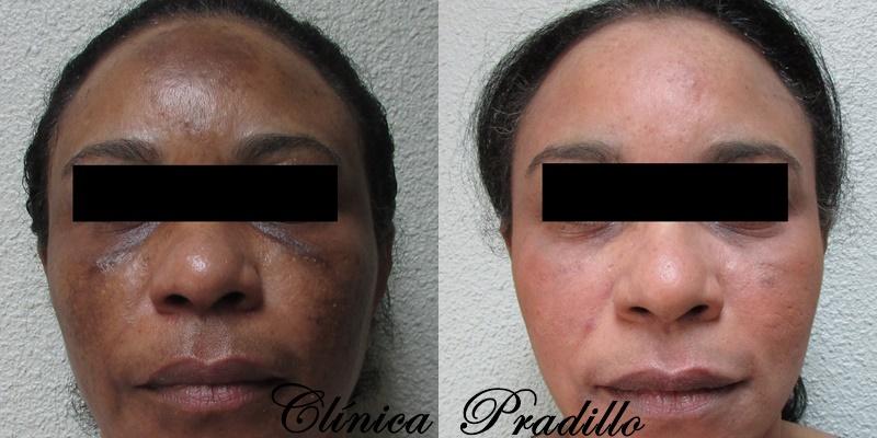 Antes y Después Peeling Facial