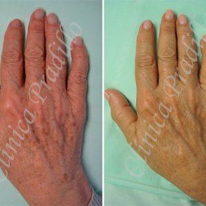 Fotorrejuvenecimiento de manos