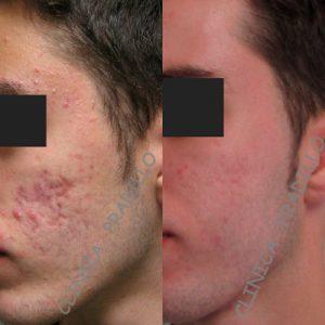 antes_y_despues_medicina_estetica_facial_22